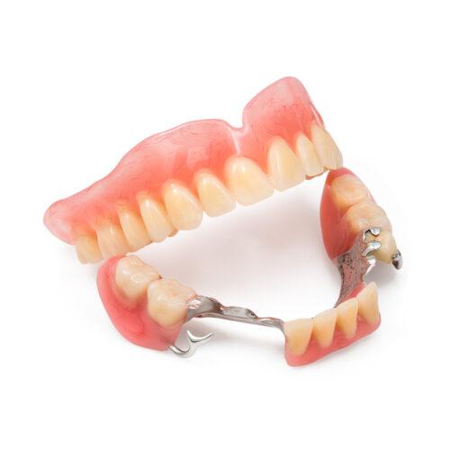 Протезирование верхних зубов