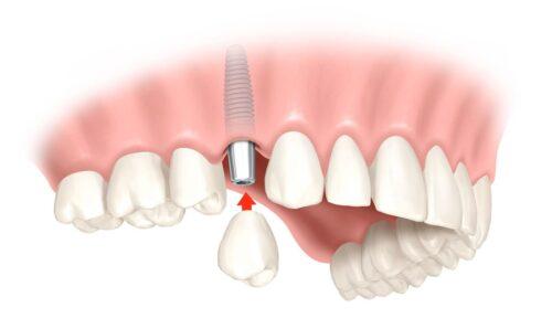 Удаление зуба и имплантация