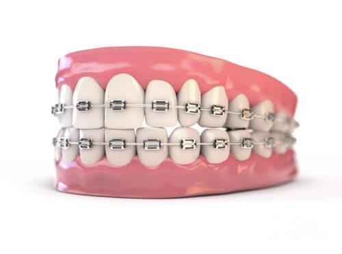 Поставить брекеты на зубы