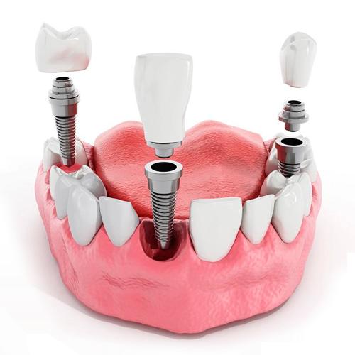 Имплантация зубов Astra Tech