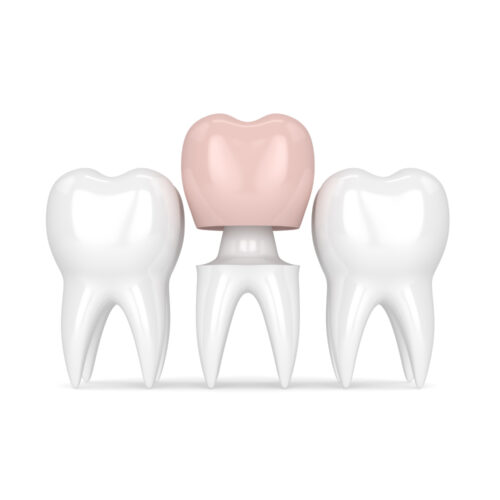 Протезирование 1 зуба