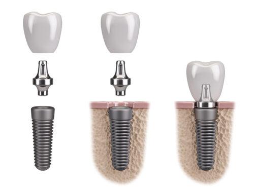 Имплантация зубов рта