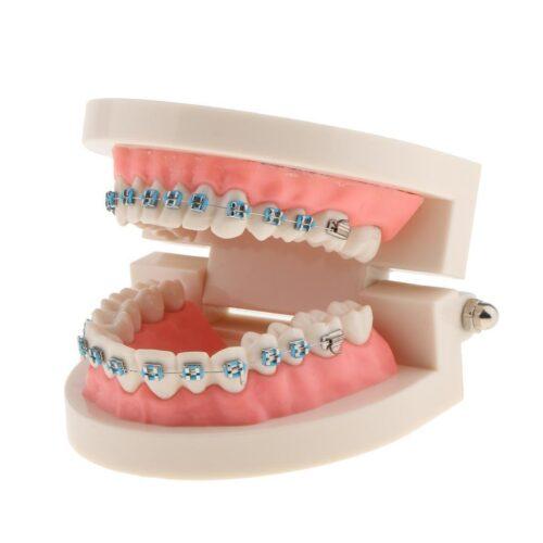 Ортодонтические брекеты