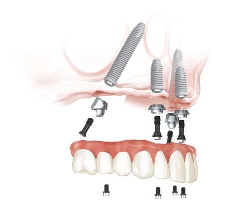Протезирование зубов на 4 имплантах