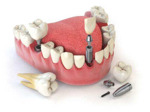 Стоматологическое протезирование зубов