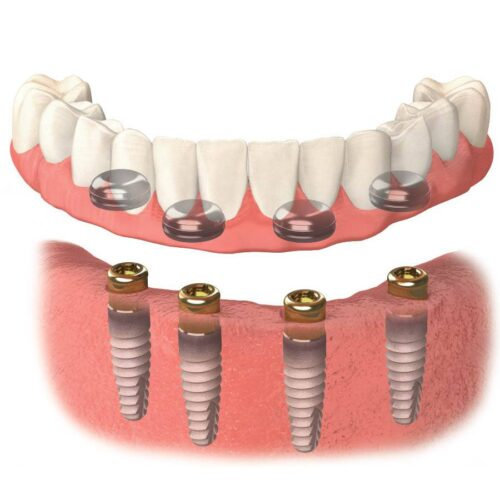 Протезирование зубов нижней челюсти