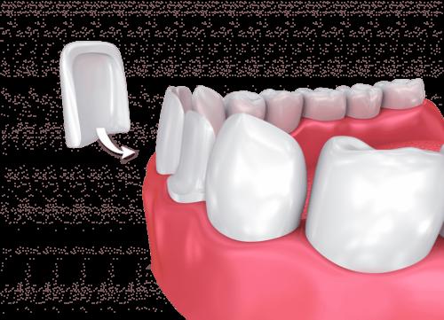 Виниры на передние зубы