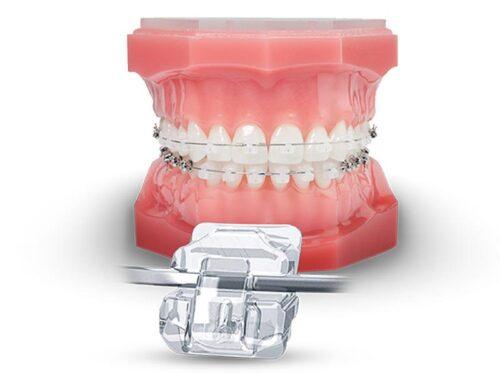 Исправление зубов брекетами