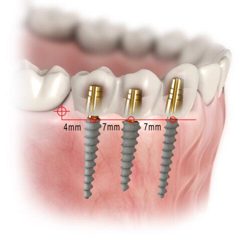 Имплантация трех зубов