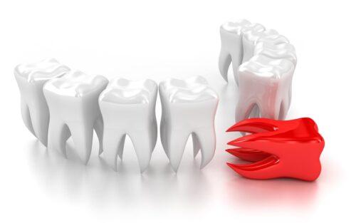 Платное лечение зубов
