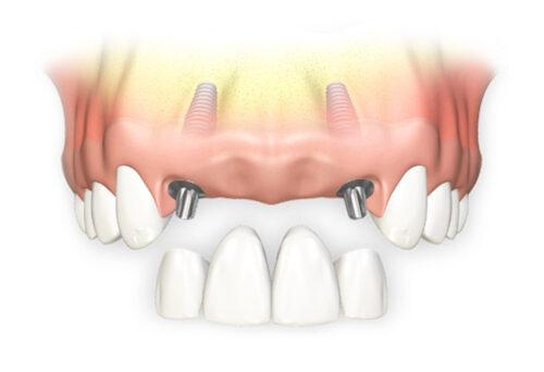 Протезирование передних зубов