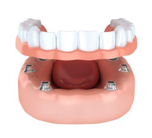 Имплантация при отсутствии зубов