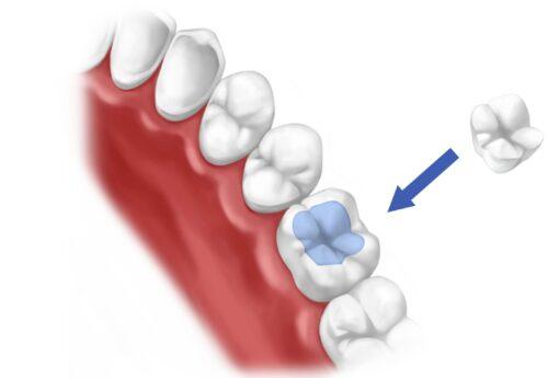 Пломба на зуб