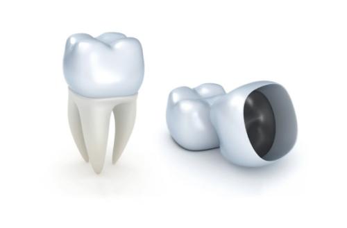 Восстановление коронки зуба