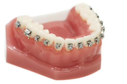 Методы исследования в ортодонтии