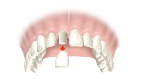 Протезированием зуба коронкой