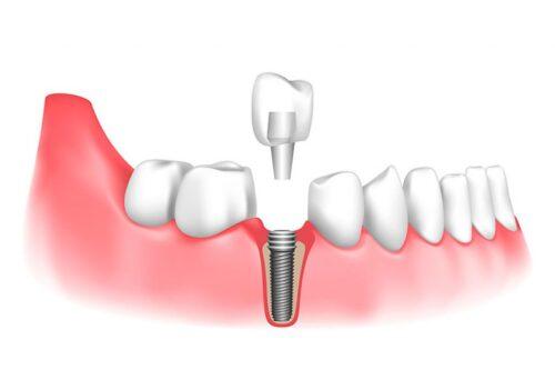 Имплантация удаленного зуба
