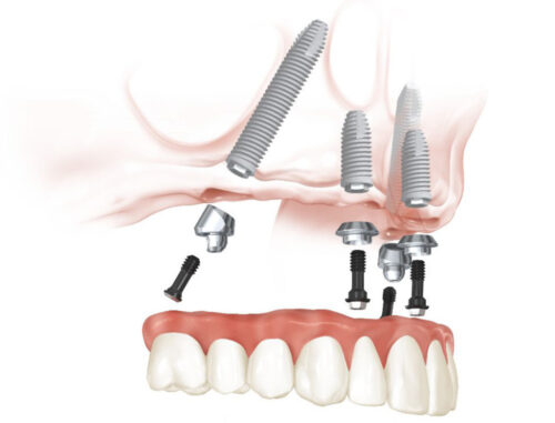 Протезирование зубов верхней челюсти