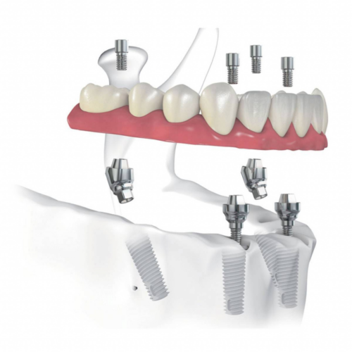 Имплантация зубов нижней челюсти
