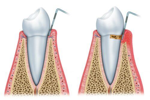Удаление парадонтозного зуба