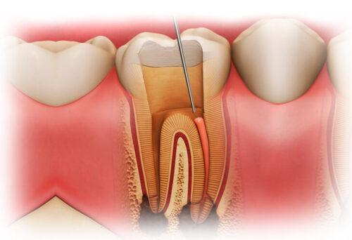 Удаление нерва из зуба