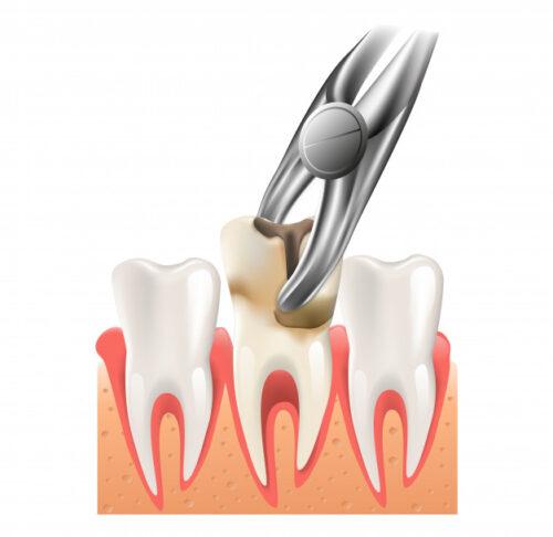 Удаление нижних зубов